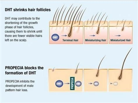 male pattern hair loss testosterone how to stop testosterone from turning into