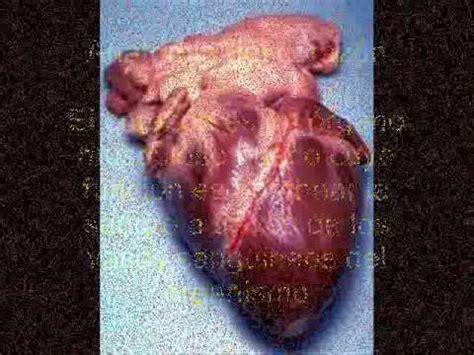 imagenes de corazones del cuerpo humano el cuerpo humano y sus organos corazon youtube