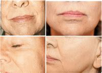 broadband light treatment cost broadband light therapy fights signs of skin aging