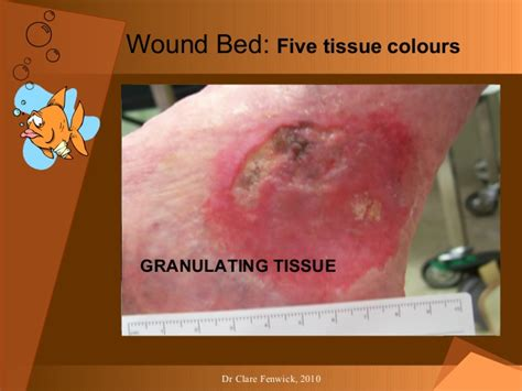 Wound Bed by Wound Physiology Cf For Pp