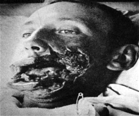 horror of the first world war