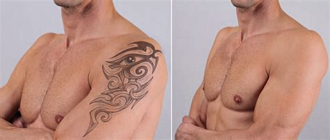 tattoo removal pics removal barry lycka md