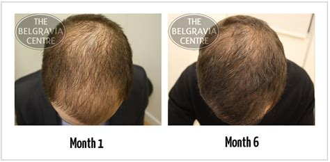 pattern hair loss cure image gallery hair loss cure 2014