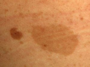 chagne colored flats flat brown spots on skin pictures photos
