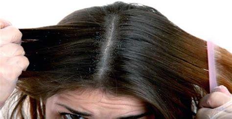 dolor cuero cabelludo mujer definici 243 n de caspa 187 concepto en definici 243 n abc