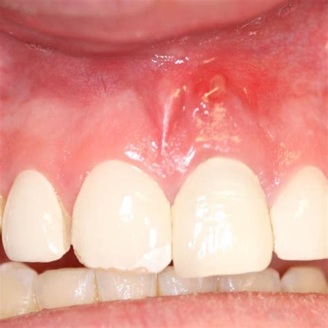 tooth abscess causes symptoms treatment pictures