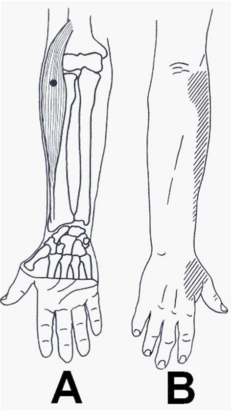 dolore al gomito parte interna articolo sull epicondilite pagina 3