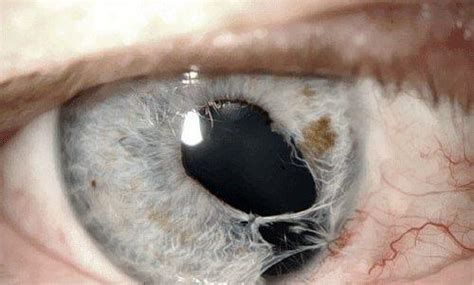 Color Blind What Do They See A Torn Iris