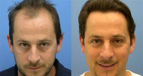 how important right hairstyle transplant hair transplantation the trends for 2015 men style fashion