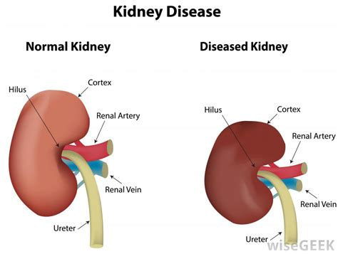 renal failure what is renal failure with pictures