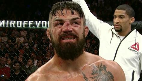 ufc american mike perry suffers gruesome broken nose