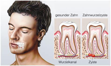 zahnschmerzen liegen zahnschmerzen ursachen therapie und wirksame hausmittel