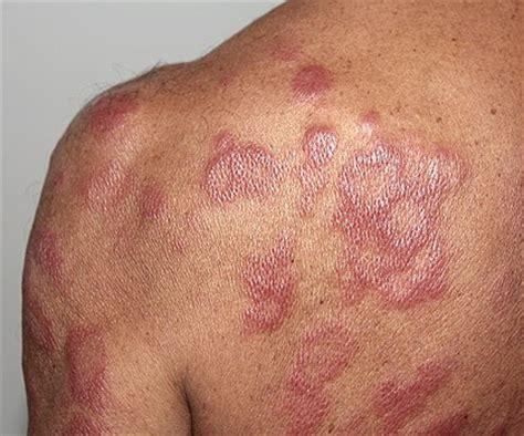 leprosy skin lesions leprosy on feedyeti com