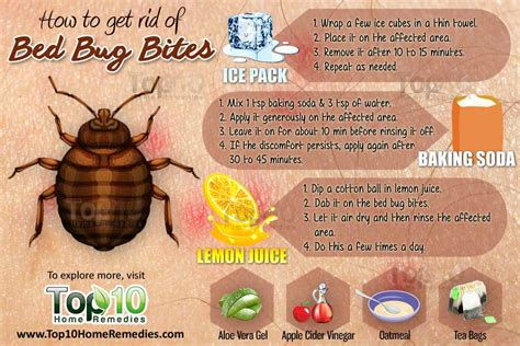 rid  bed bug bites page    top  home remedies