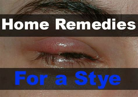 1000 ideas about stye remedy on remedies eye