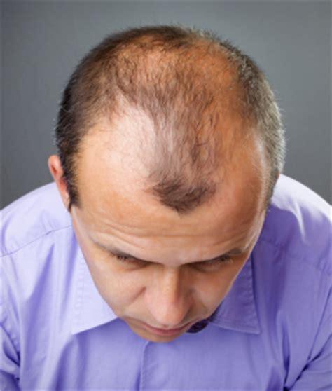 haartransplantation wann fallen die haare aus haarausfall haartransplantation t 252 rkei
