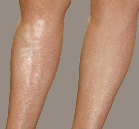 how to cover scars on legs with amp without makeup