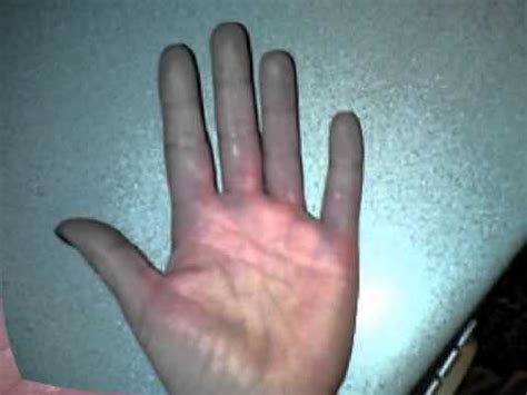 the effects of 7 on raynaud s disease victims