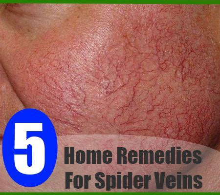 5 effective herbal remedies for spider veins how to