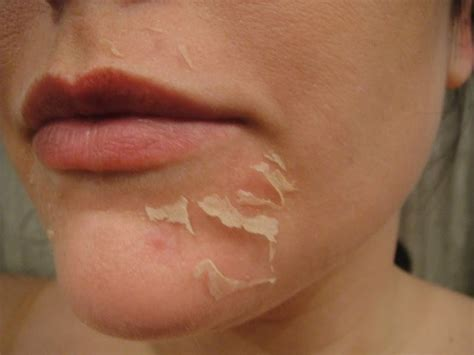 tua usa permanent makeup skin peeling