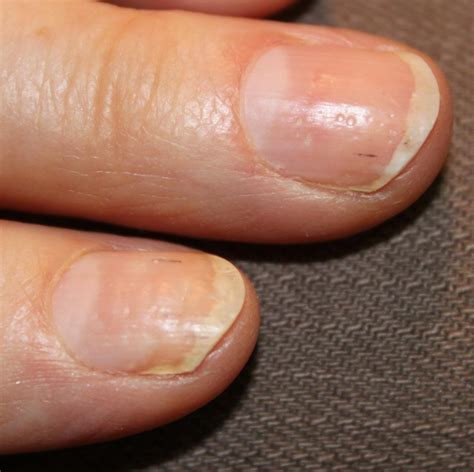Nail Of by Toenail Psoriasis Www Pixshark Images Galleries