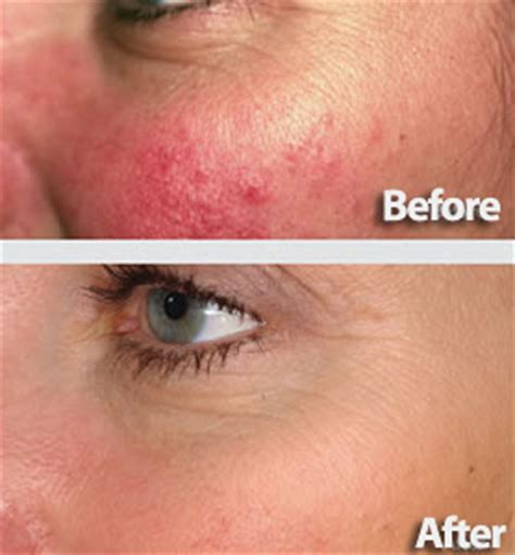 genesis remedies metronidazole for rosacea side effects