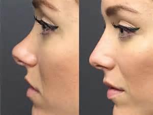 nasen op vorher nachher frau nasen lippen br 252 ste sch 246 nheits op ohne operation