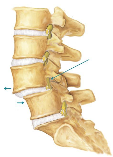 Grade 1 Anterior Listhesis by Back Slip Disc Slipped Disc Spine Problem Spine