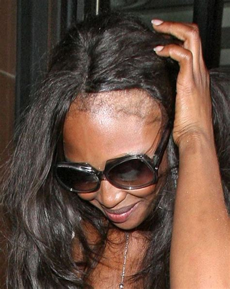 hair weave styles for thinning edges naomi cbell models distinct bald patches