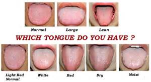 tongue color healthy tongue color pictures to pin on pinsdaddy