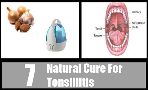 7 cure for tonsillitis how to cure tonsillitis