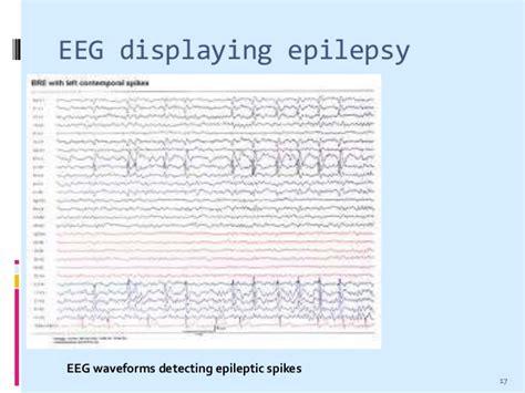 eeg pattern recognition quiz electroencephalogram eeg