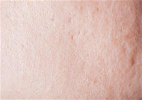 human skin texture royalty free stock images image 6094039 regular human shoulder stock photos image 13687103