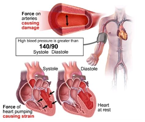 c section due to high blood pressure blood pressure a silent killer