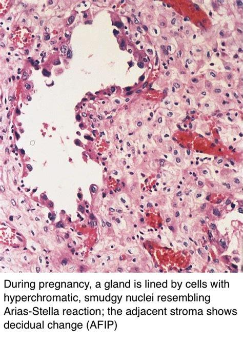 Arias Stella Reaction Pathology Outlines by Pathology Outlines Endometriosis