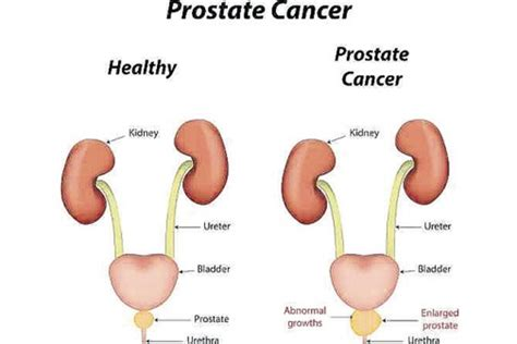 light treatment for cancer light therapy and prostate cancer what do you know about it
