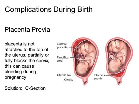 risk of placenta previa after cesarean section all living things can reproduce ppt video online download