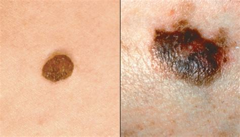 differences between malignant melanoma and a normal mole image gallery melanoma moles