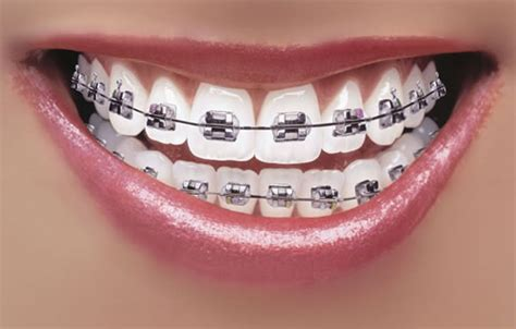 comfort dental braces cost what to eat when you have dental issues specifically