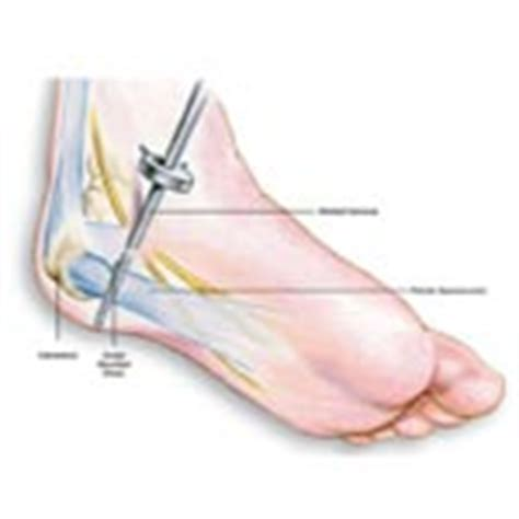 Plantar Fasciitis Surgery When Is It Recommended Planters Fasciitis Surgery