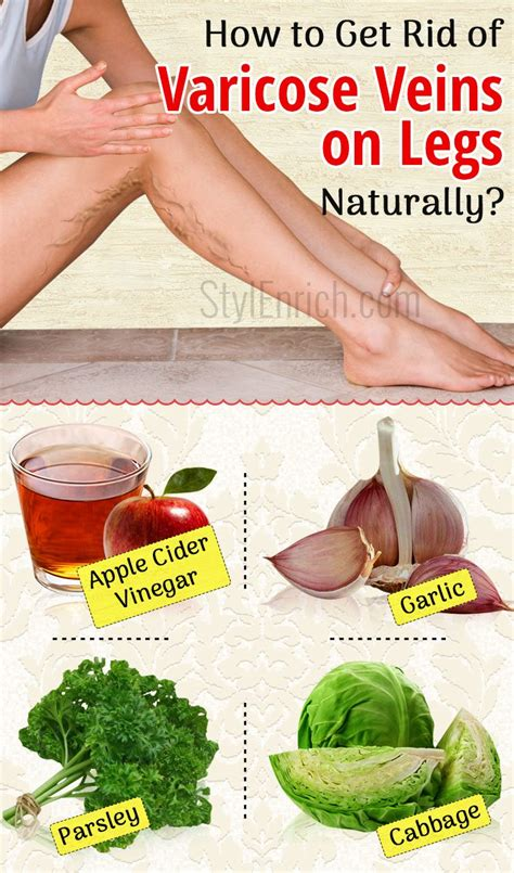 How To Get Rid Of by How To Get Rid Of Varicose Veins On Legs Using