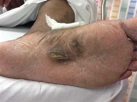 male pedicures etalk the pedicure gone wrong