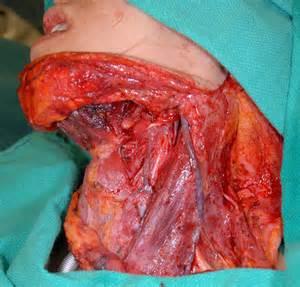 magazine le patient le cancer de la bouche une