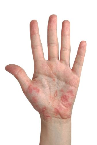 what to do for itchy itchy palms how to treat it and things to