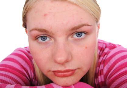 Double acne rate among overweight teen girls