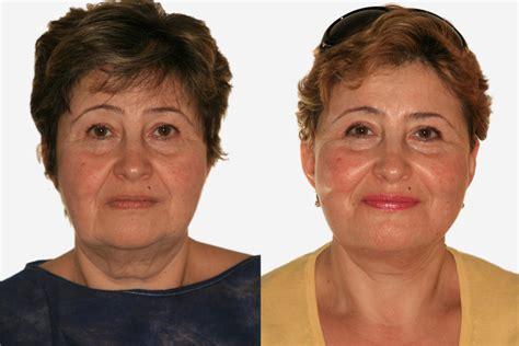 Facelift Vorher Nachher by Beispiel 2 Vorher Nachher Bilder Facelift