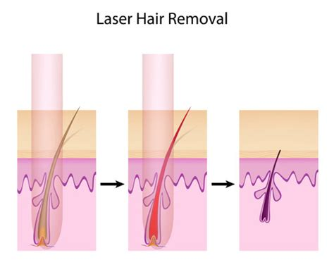 laser hair removal at home home laser hair removal