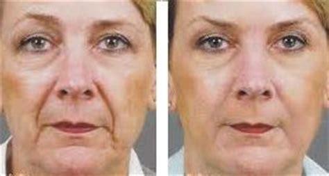 consecuencias exceso botox lo mejor botox para eliminar las arrugas