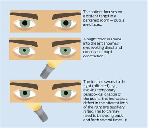 swinging light test blurred vision and pain in the eye medical journal of