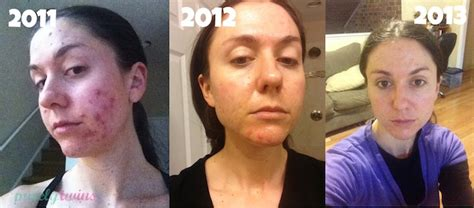 Coconut Detox Before And After by Coconut For Acne Before And After Www Pixshark
